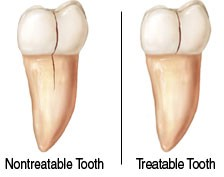 Comparison between a non-treatable tooth vs a treatable tooth