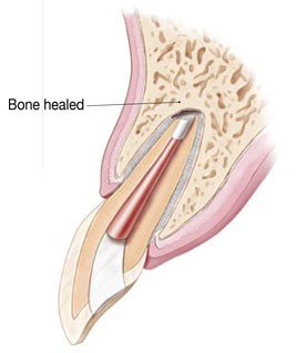 Diagram showing a healed bone post surgery