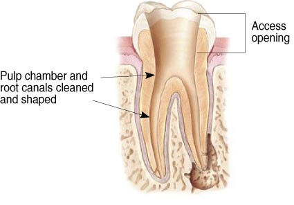 Diagram of access opening and pulp channel for root canals